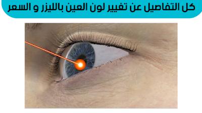 تغيير لون العين بالليزر في دبي, عملية تغيير لون العين في العراق, عملية تغيير لون العين في السعوديه, عملية تغيير لون العين في ايران, تغير لون العين بالليزر في تركيا, تغيير لون العين بالليزر في الرياض, عملية تغيير لون العين في تركيا, ,عملية تغيير لون العين بالليزر في الاردن
