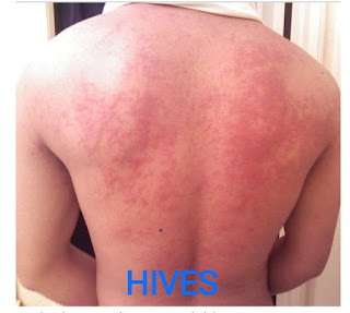 5 Exemption of hives will not expect you
