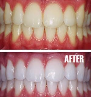 tips_gigi_putih
