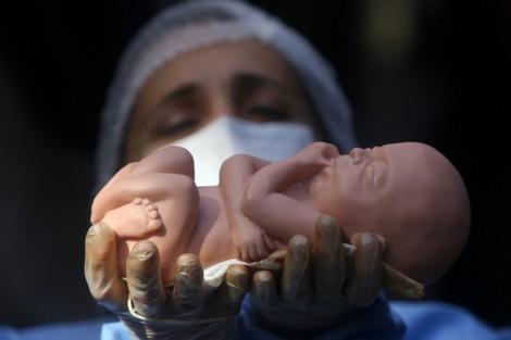 ائتلاف مغاربي يدافع عن حقّ النساء في الإجهاض الآمن والقانوني
