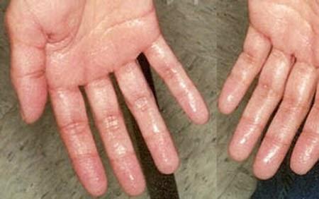 Chân tay ra mồ hôi khi trời lạnh là bệnh gì, có nguy hiểm không?