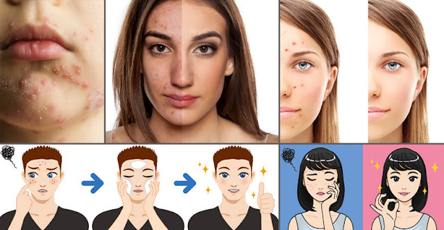 A Few Proven Ways To Eliminate Acne And Pimples Within 24 Hours