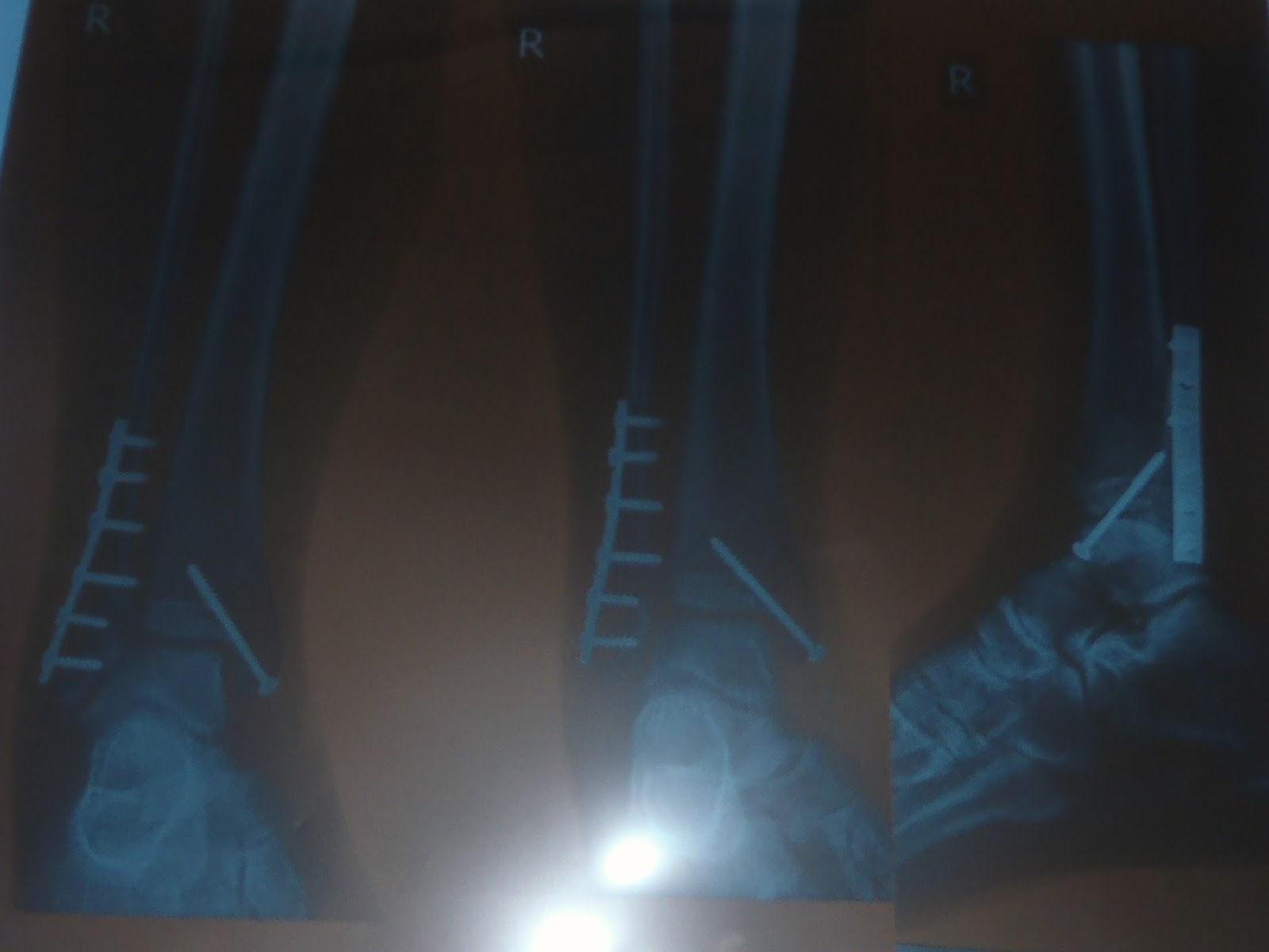 Broken Ankle Xrays in Thailand from Full Moon Party