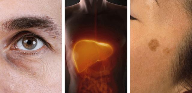 síntomas de mal funcionamiento hepático