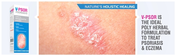 The lesions associated with Guttate psoriasis are normally small and are either round or tear drop in shape 1