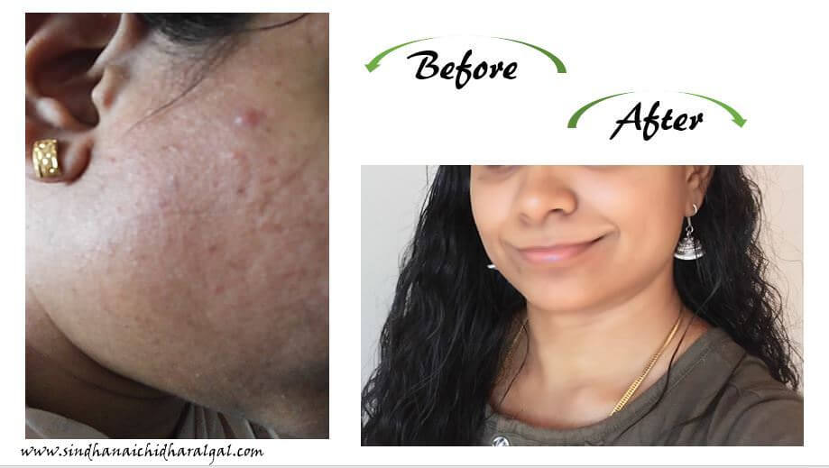 How to get a clear acne free skin