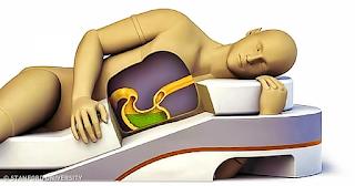 Πώς η στάση του σώματος σας όταν κοιμάστε επηρεάζει την υγεία σας