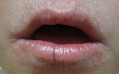 Penyebab Bibir Terasa Tebal