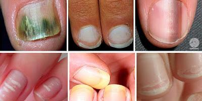 as unhas e a saúde do organismo