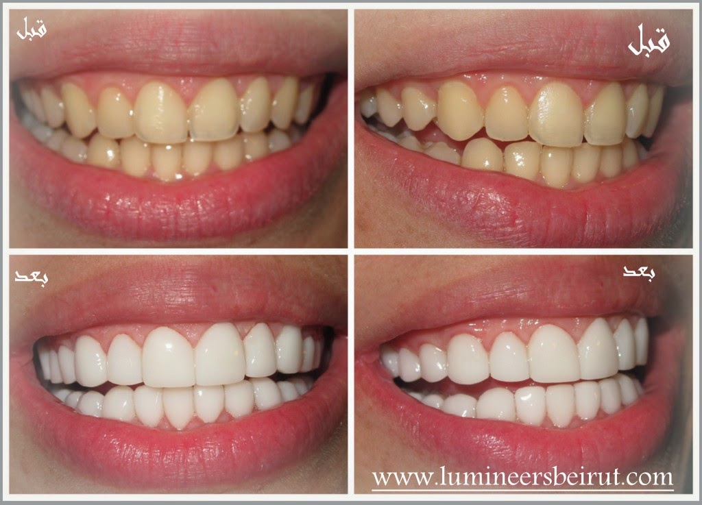 Laser Teeth Whitening Lebanon Beirut Complications And Expected