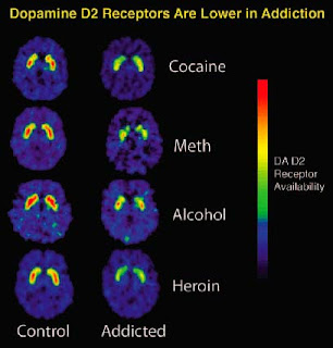 Dopamine%2BReceptors%2Bin%2BAddiction Is Serial Murder a Result of Addictive Thinking?
