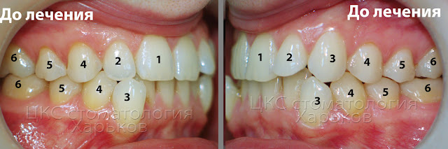 Прикус в боковых участках до ортодонтического лечения