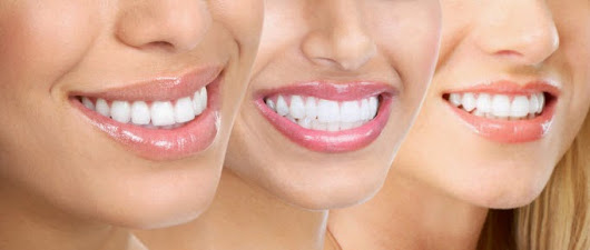 Smile Architect - Center for Dental Care Bangalore: Dental treatments