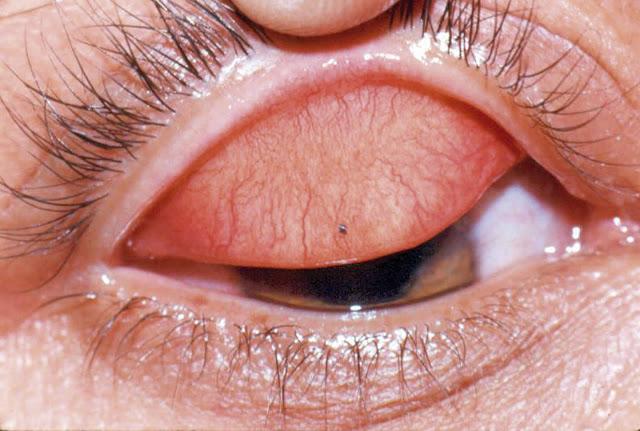 Ocular foreign body