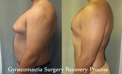 Gynocomastia Surgery Before and After Pictures