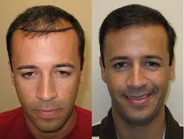 saç ekimi öncesi ve sonrası foto 34