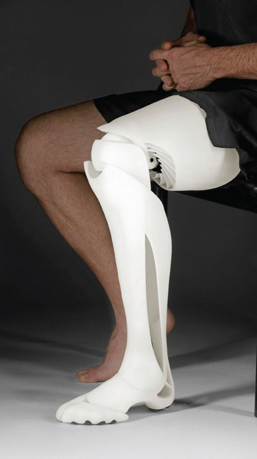 3d printed prosthetic leg lung limbs windpipes medical