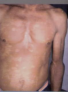Pitiríasis versicolor