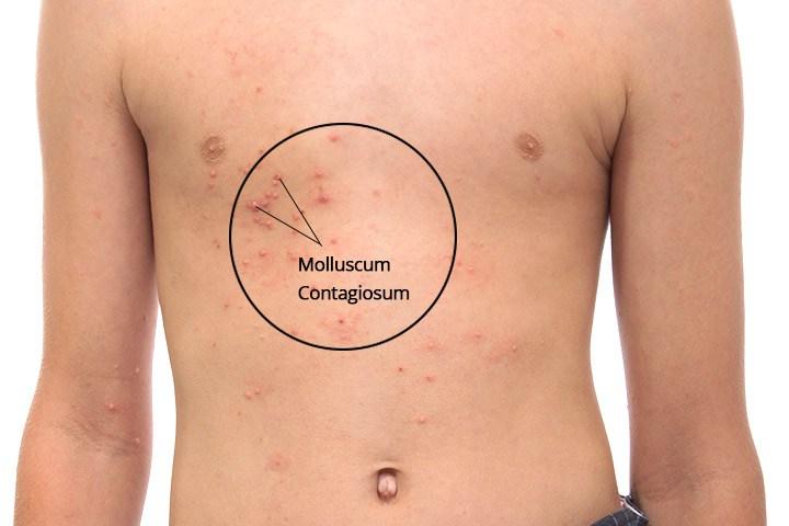Molluscum contagiosum definition-8377