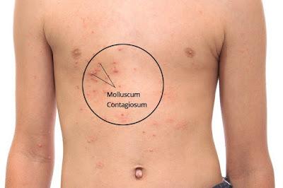 Qu'est-ce que le molluscum contagiosum?