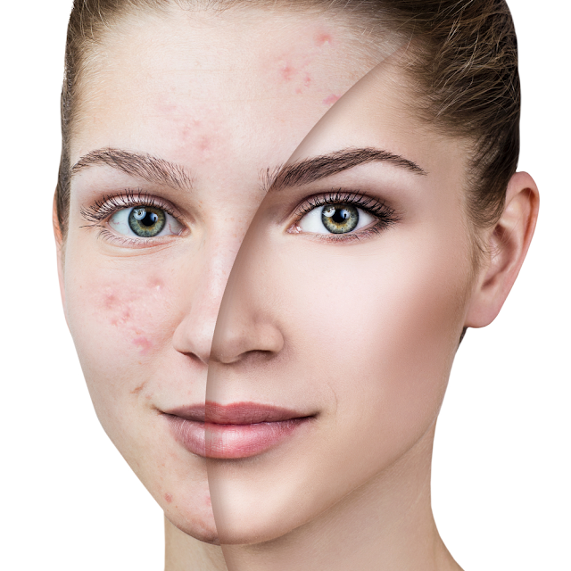 How Acne Starts And Maybe How You Deal With It