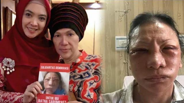 Sebarkan Foto Ratna Sarumpaet 'Babak Belur', Dorce Siap Dilaporkan: Emang Gue Takut