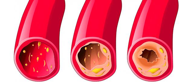cómo limpiar las arterias con ajo