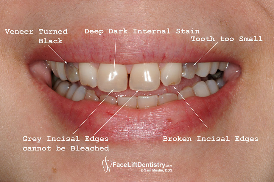 Tetracycline Stains On Teeth Long Live Fitness