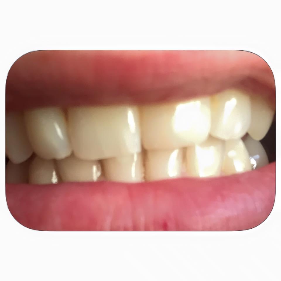 Al estilo de mar blanqueamiento dental en casa - Como blanquear los dientes en casa ...