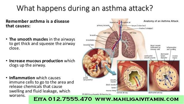 ubat asma semput lelah