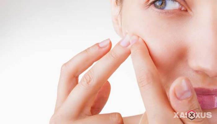 20 Cara Menghilangkan Bruntusan di Wajah Dengan Cepat dan Alami