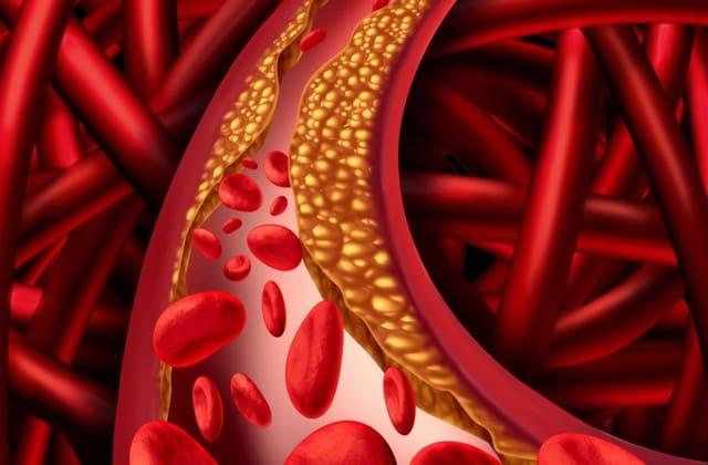 Wajib Kamu Konsumsi! 10 Makanan Penurun Kolesterol Berikut yang Gampang Kamu Temukan