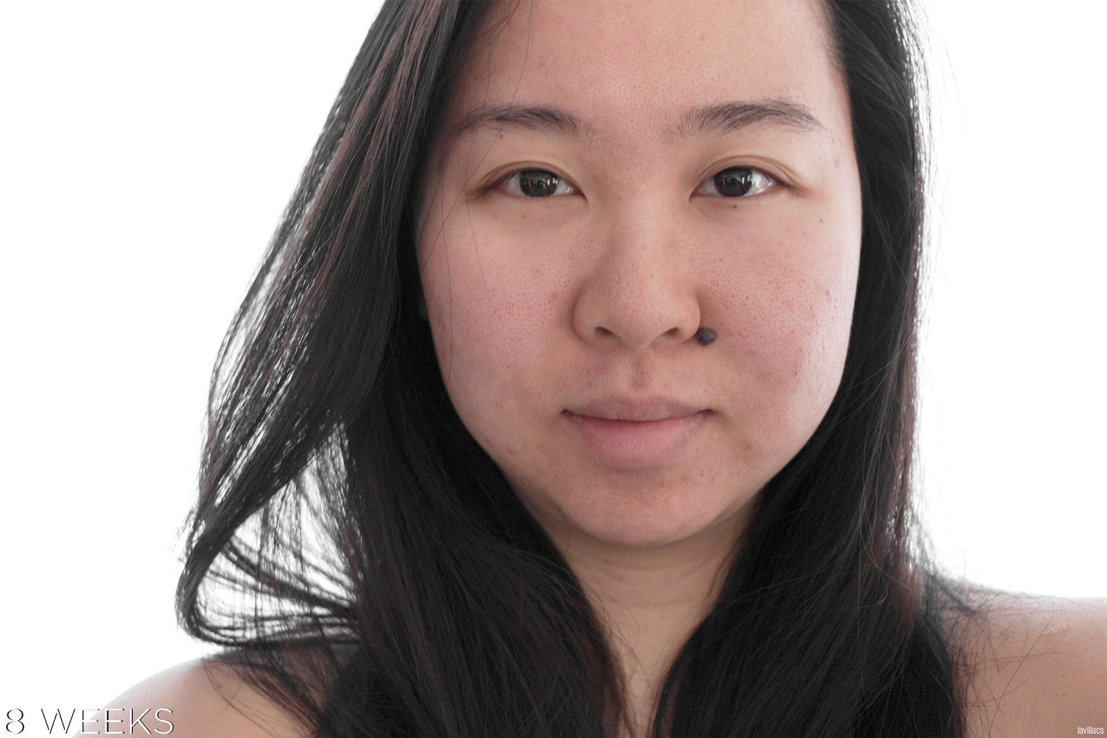 tria Hair Removal Laser Facial Hair 8 Weeks