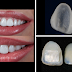 Dental Veneers: The Secret to the Celebrity Smile