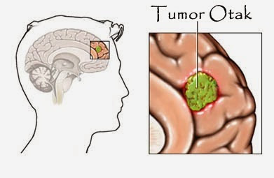 Obat Tumor Otak Alami, Ampuh Menyembuhkan Tumor Otak Secara Alami