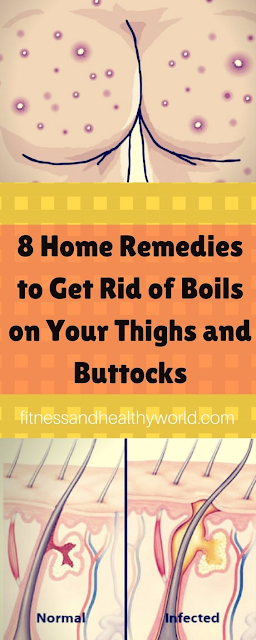 8 HOME REMEDIES TO GET RID OF BOILS ON YOUR THIGHS AND BUTTOCKS