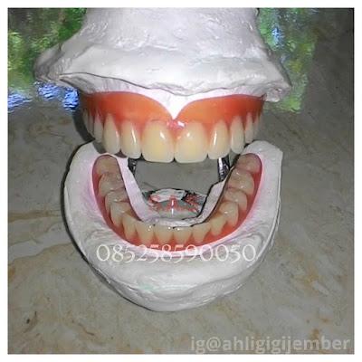 Koleksi foto gigi tiruan akrilik lepasan lepas pasang contoh gigi tiruan