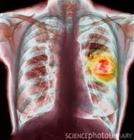 obat herbal kanker paru paru aman ampuh