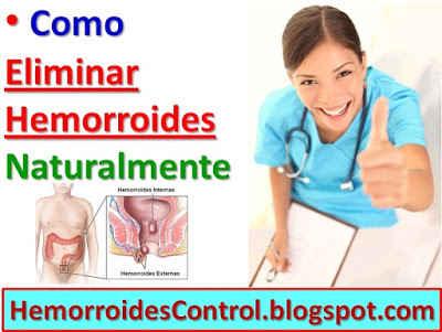 remedios para curar hemorroides externas