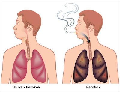 Obat Herbal PPOK (Penyakit Paru Obstruktif Kronis) Paling Mujarab