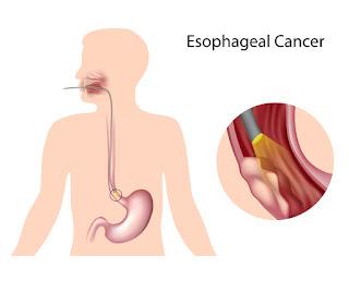 http://gastrosurgeononline.com/gastroesophageal-cancer/