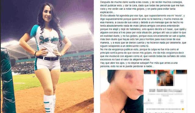 Porrista denuncia golpiza de su novio