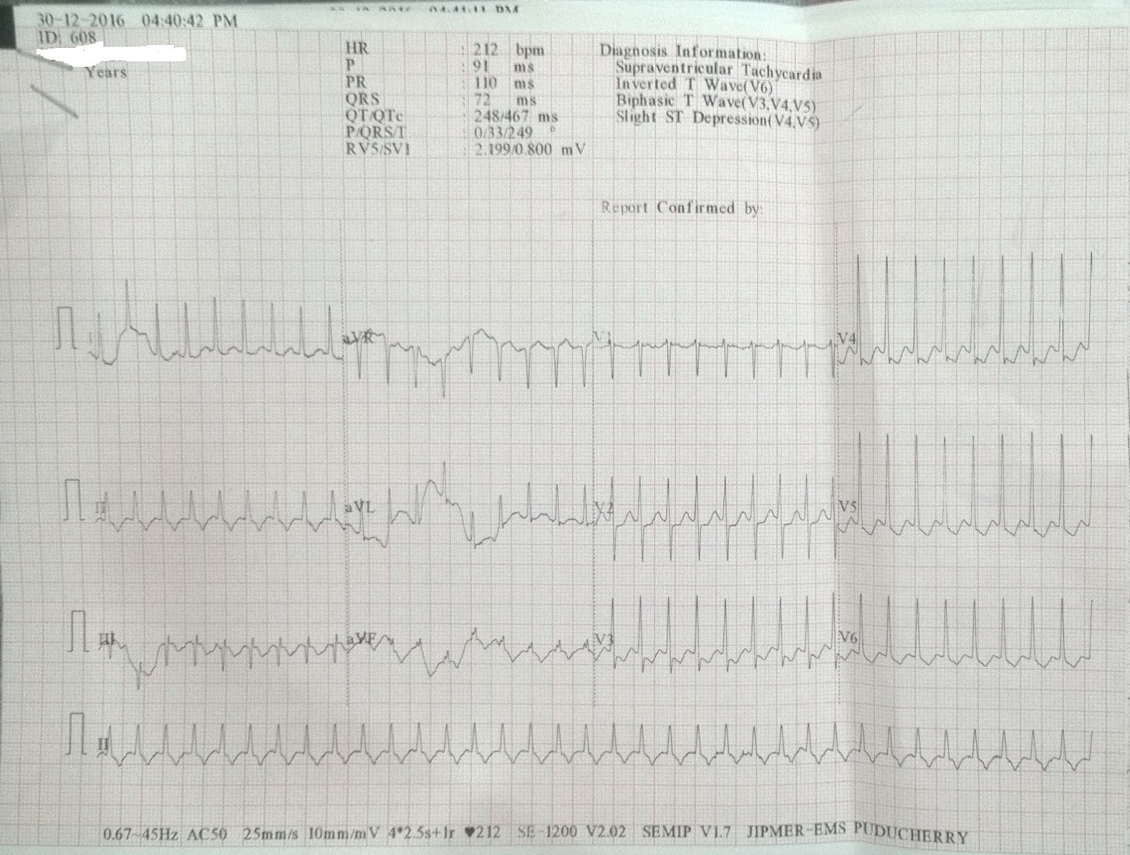 Cardiology window: ECG WPW syndrome