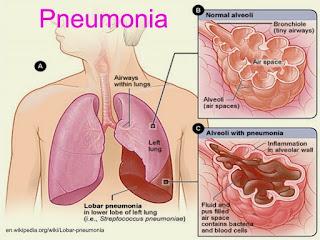pneumonia-jangkitan-pundi-udara