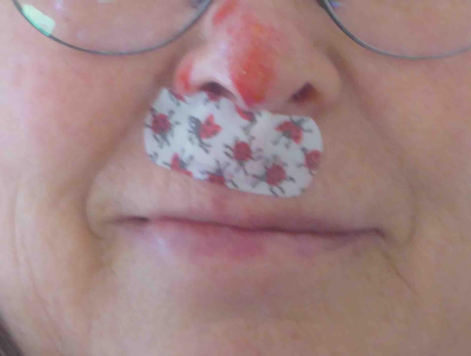 fat bottom lip