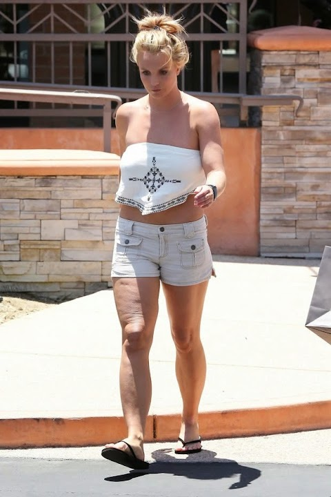 Britney Spears displays cellulitis in the legs
