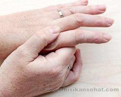 Cara Mengatasi Bengkak Pada Tangan atau Kaki