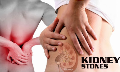 Urinary calculi/ kidney stone and its Ayurveda management