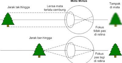 Cara Menyembuhkan Mata Minus dengan Cepat dan Efektif