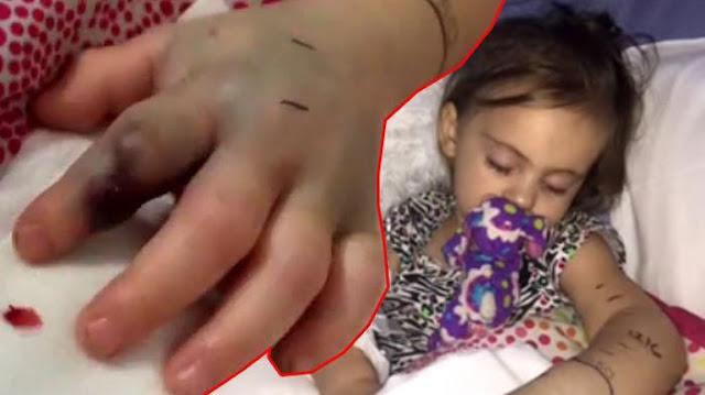 Astagfirullah! Tangan Anak 2 Tahun Ini Tiba-tiba Berubah Jadi Warna Hitam, Penyebabnya Bikin Ibu Shock